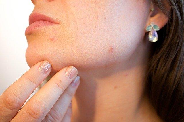 Jak wygładzić skórę twarzy po trądziku?